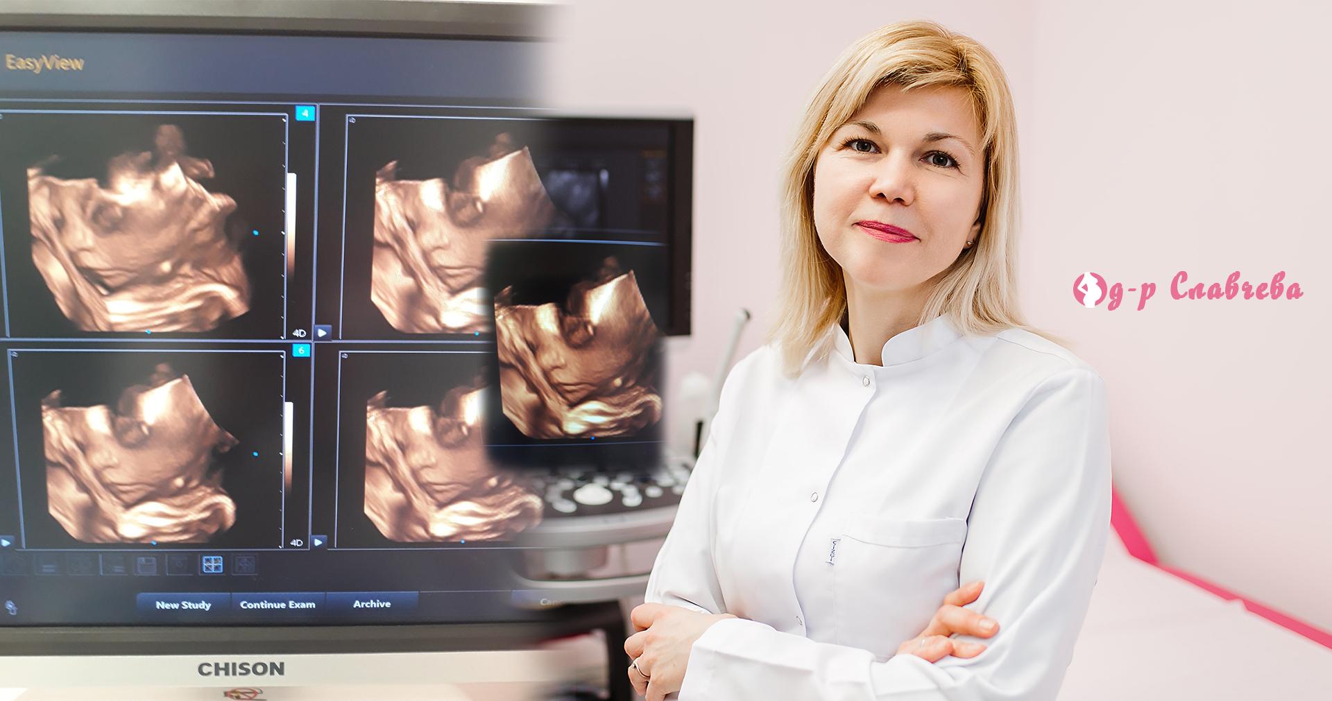 4D технологията в ултразвуковата диагностика - реален поглед в бъдещето!